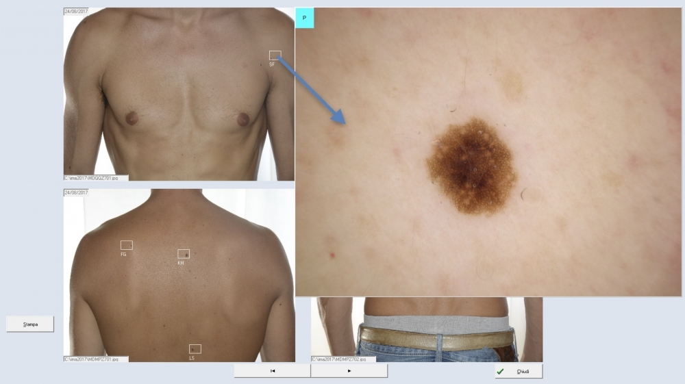 Total Body ed individuazione - Software DDAX3 e Video Dermatoscopi HD Dell'Eva-Burroni